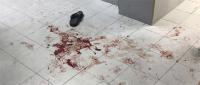 イスラエル軍が冷酷にも病院を襲撃